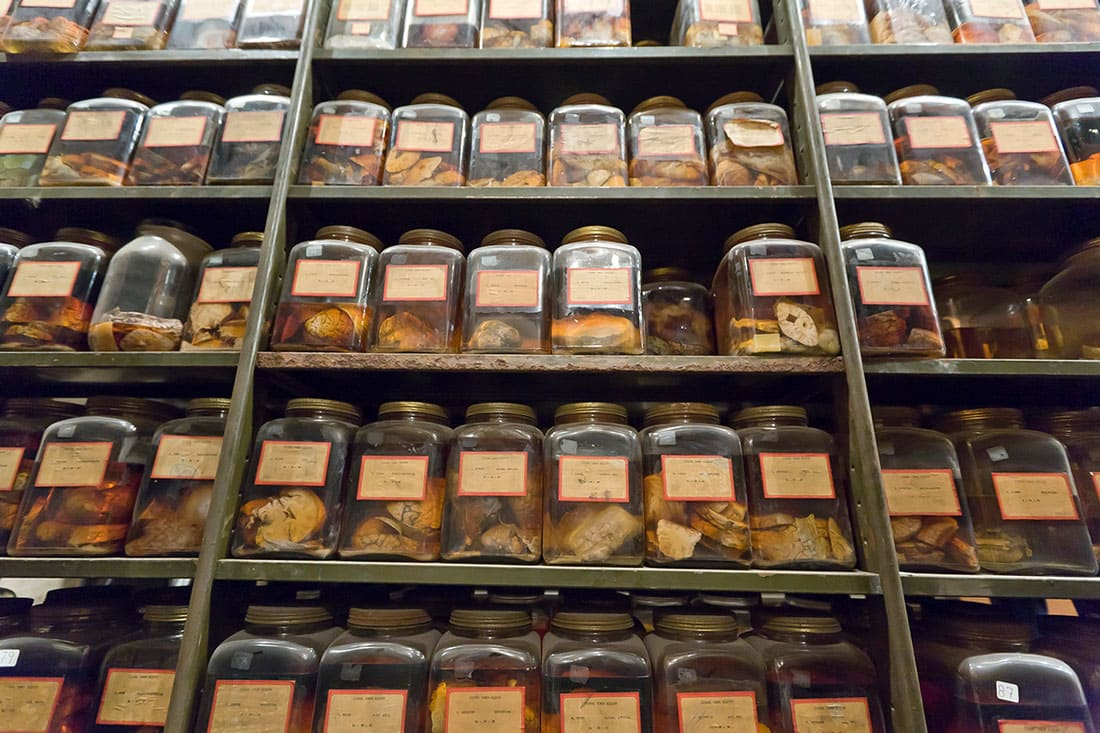 Cushing Brain Collection