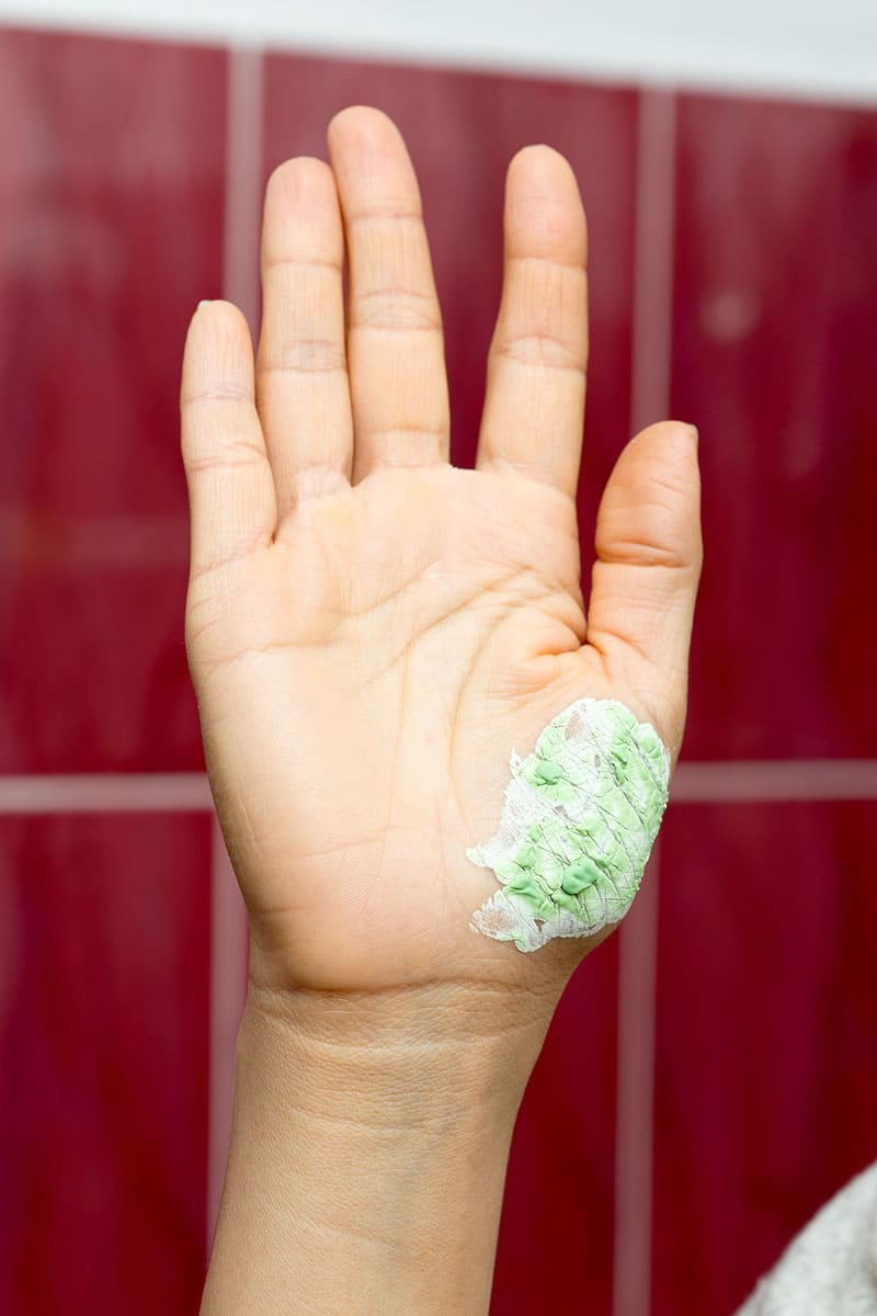 A hand with toothpaste on it, covering a burn.