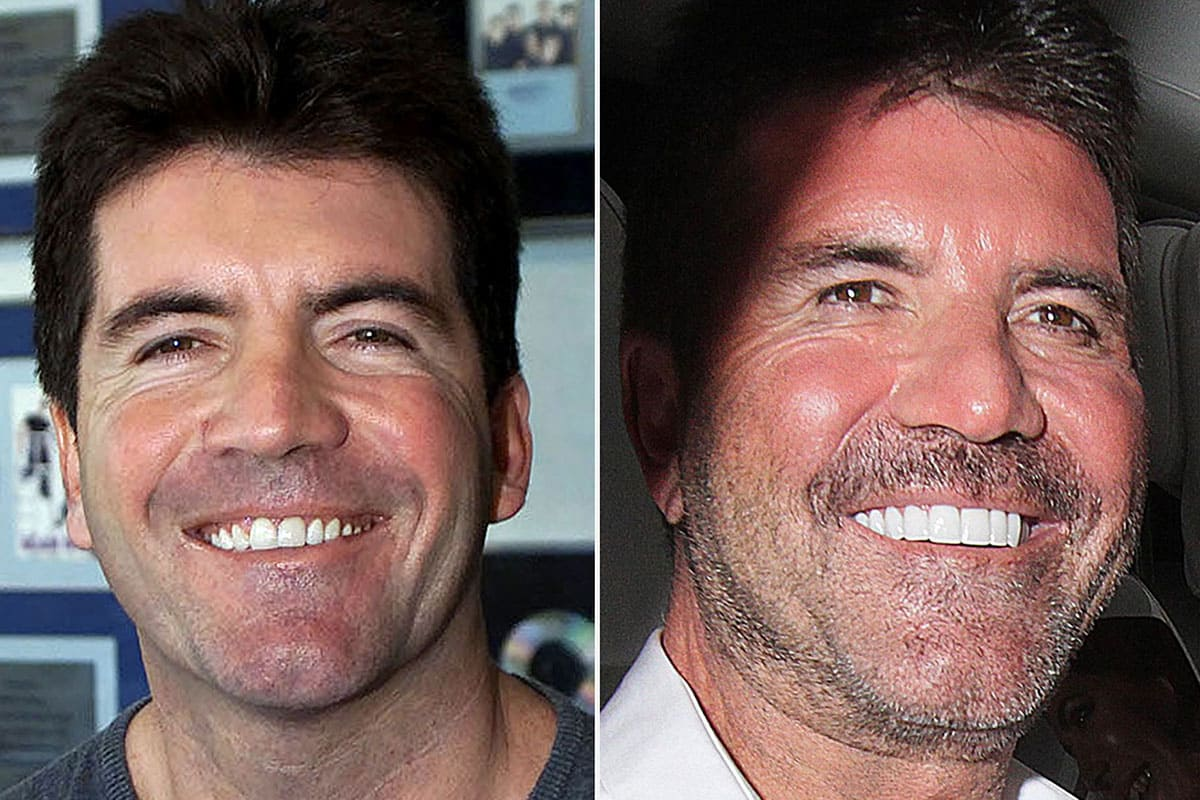 Simon Cowell then and now