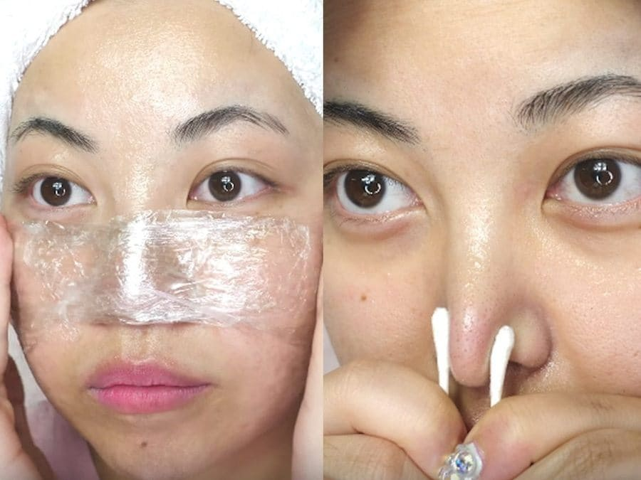 Cleaning blackheads with Vaseline and plastic wrap