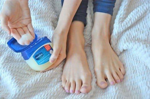Using Vaseline on cracked feet
