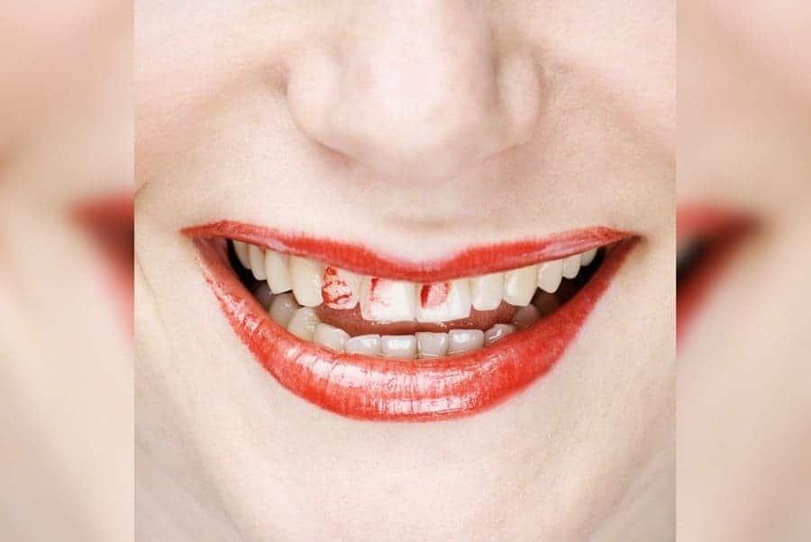 Lipstick on teethes