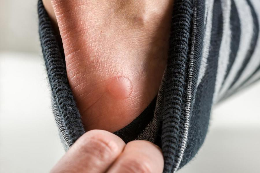 Close up on a blister on the foot