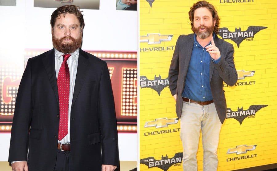 Zach Galifianakis in 2009. / Zach Galifianakis in 2017.