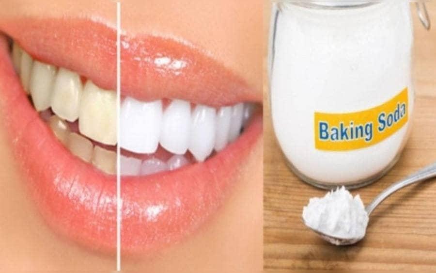 Cuadro comparativo de una sonrisa con dientes blancos y la otra mitad con dientes amarillentos, junto a una cucharadita de bicarbonato de sodio.