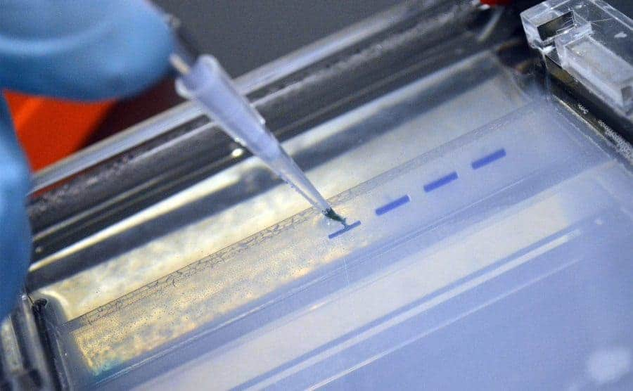 A lab technician testing DNA markers.